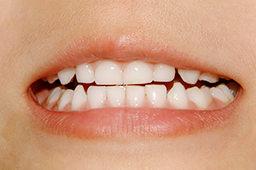 矯正の必要な歯並び