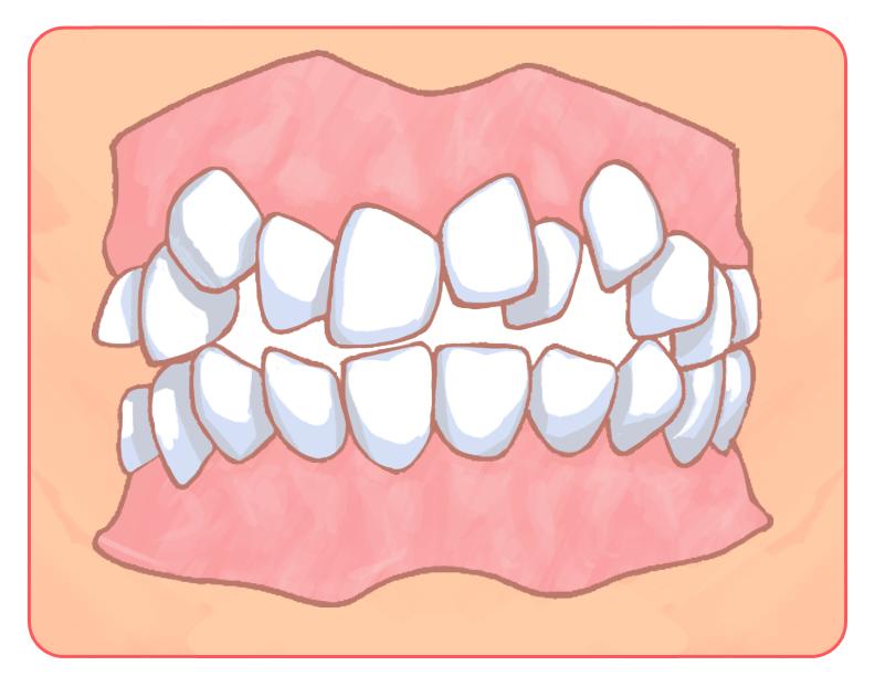 歯がガタガタ(叢生:そうせい)