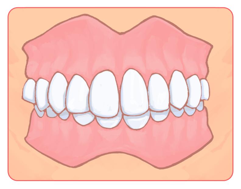 出っ歯(上顎前突:じょうがくぜんとつ)